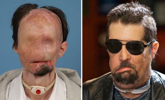 Obličej před a po transplantaci