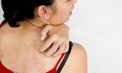 Podráždění kůže způsobené pracím práškem je zpravidla svědivé (foto Shutterstock)