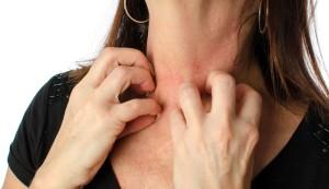 Zarudlá kůže se nejčastěji objeví na citlivých místech (foto Shutterstock)